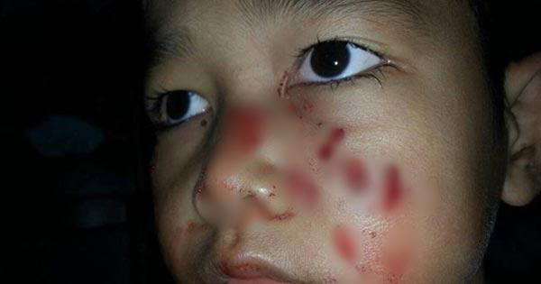 เด็กถูกงูกัด